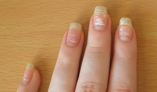 Белые полоски на ногтях что это